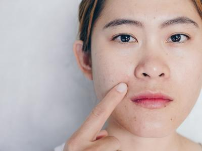 Skin problems caused by wearing face masks